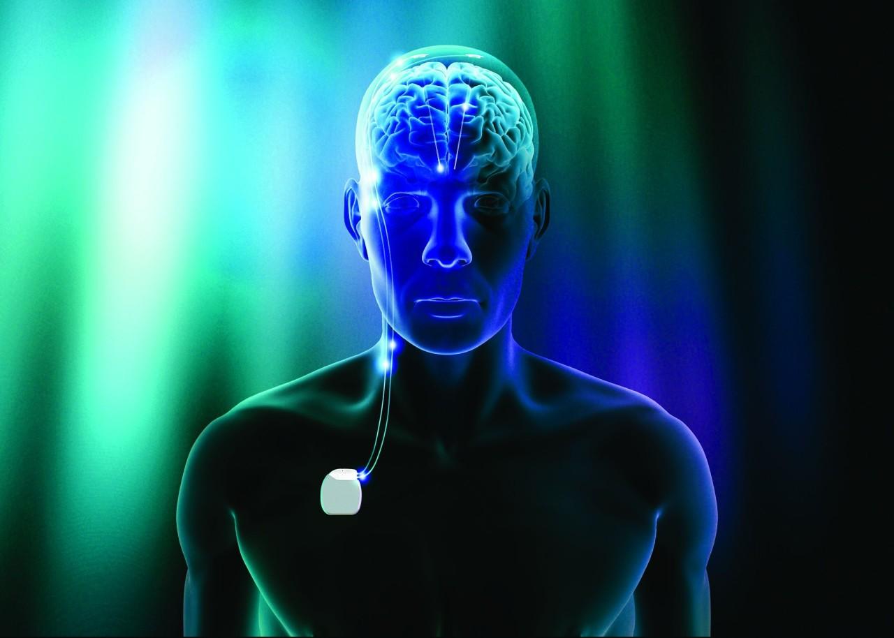 Die tiefe Hirnstimulation (THS, Tiefenhirnstimulation) hat sich bisher besonders bei fortgeschrittenem Parkinson und Tremor bewährt.