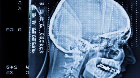Lebensberichte in Kategorie Hirnblutung